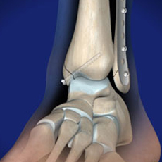omaha ankle fracture surgery