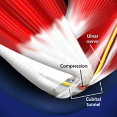 cubital tunnel release