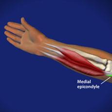 golfers elbow omaha