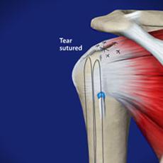 arthroscopic rotator cuff repair