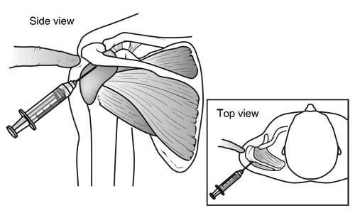 shoulder impingement injection