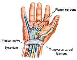 carpal tunnel syndrome | omaha, ne, Cephalic Vein