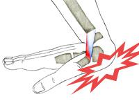 wrist sprain dr keiser