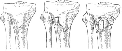 proximal tibia fractures omaha