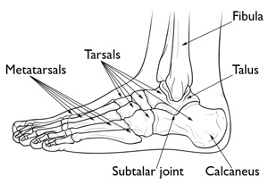 The Tailors Bunion together with Trochanter as well Heel Bone Fractures also Lower Leg Bones Diagram additionally Anderson Silva Leg Injury Ufc 168 Dec 28 2013. on knee bones diagram