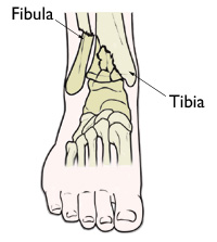 Pilon Fractures of the Ankle