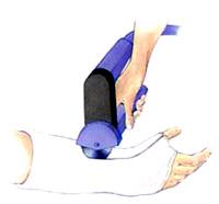 cast removal aaos orthopedics